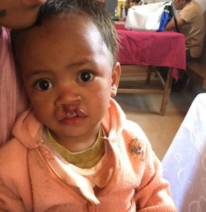 This young girl received surgery to correct her cleft lip through cooperation with the local Lutheran church and a generous LCMS donor.